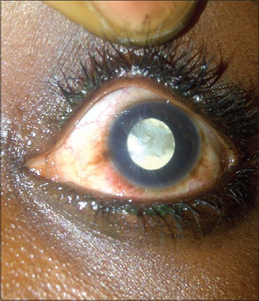 Figure 1: Complicated cataract right eye with calcified cortex scalloped atrophy of peripheral iris (preoperative photograph)