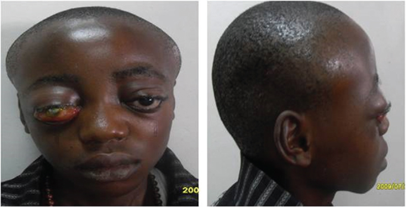 Figure 1: A patient with massive SGH and OSPH. Note the marked scalp swelling (the biparietal bossing), and bilateral proptosis, worse on the right. The right eye has severe chemosis, and severe exposure keratopathy