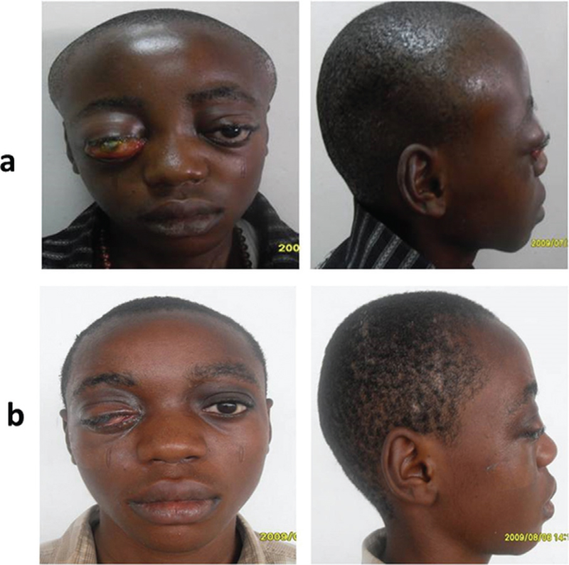 Figure 4: Blindness from massive SGH and OSPH. The before (a) and after (b) clinical photographs of the patient. There is good cosmetic outcome, cranial and orbital. The proptosis was much ameliorated on both sides